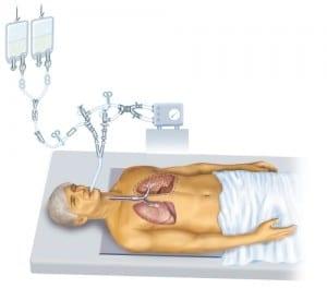 Refurbished Pulmonary Endoscopy Tools